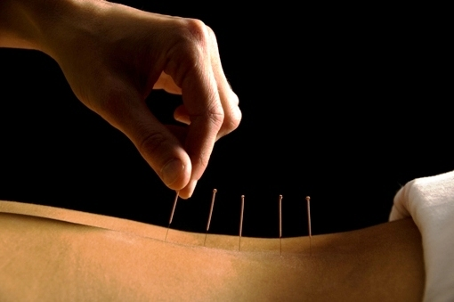 Carrying out acupuncture treatment