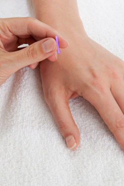 Acupuncture needle being applied to hand to relieve chronic headaches