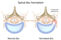 A herniated disc is often the cause of sciatica