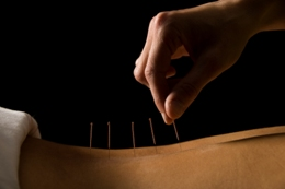 Acupuncture is a safe therapy for treating menopause symptoms
